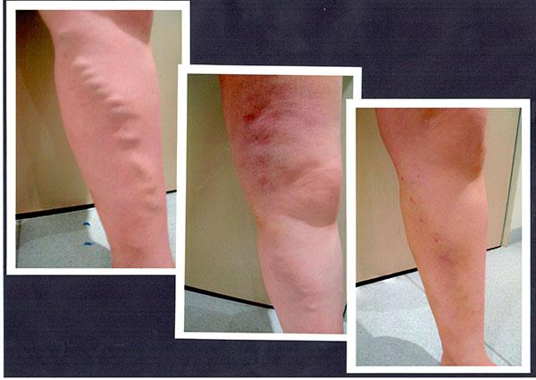 1)-Pre-Procedure-2)Post-Laser,-3)-Post-Phlebectomy-1-Week