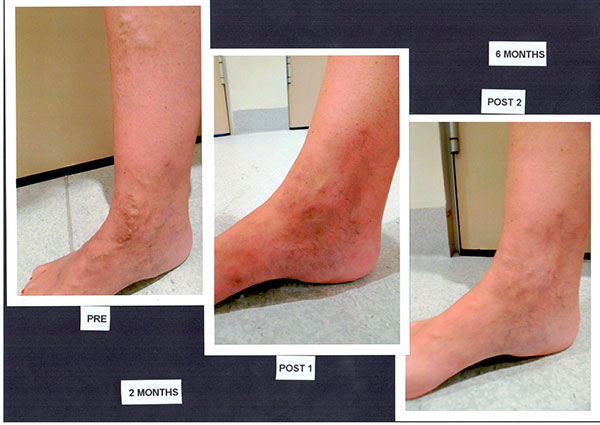 Patient-1)-Foam-Sclerotherapy-1)-Pre-2)-2-month-post-3)-6-month-post-(2)