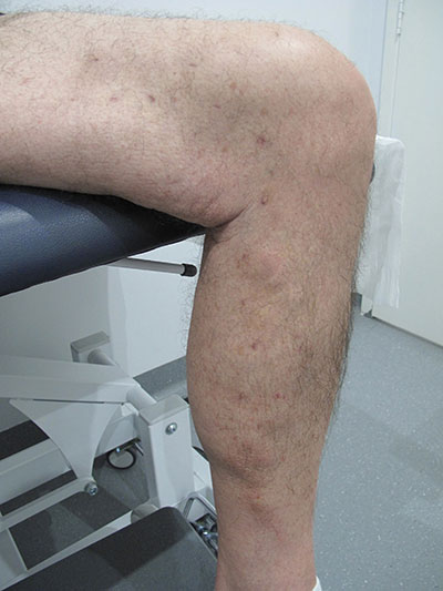 Patient-1)-Phlebectomy-and-Sclerotherapy-6-months-post-(1)