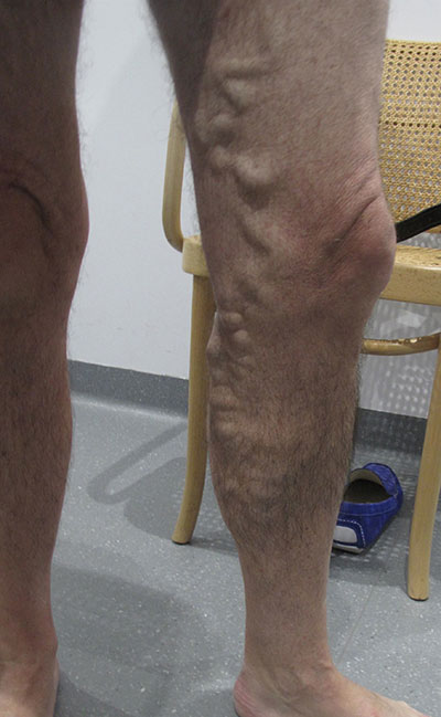 Patient-1)-Phlebectomy-and-Sclerotherapy-before-procedure
