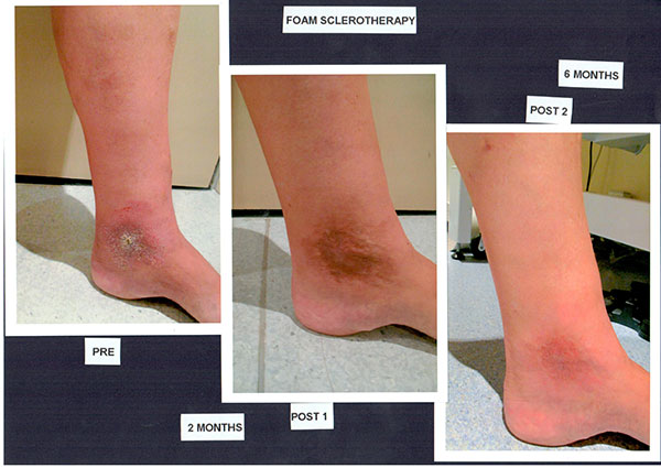 Patient-2)-Foam-Sclerotherapy-1)-Pre-2)-2-Months-Post-3)-6-months-Post