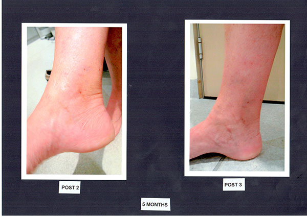 Patient-2)-Sclerotherapy-5-months-Post-2-&-Post-3-(1)