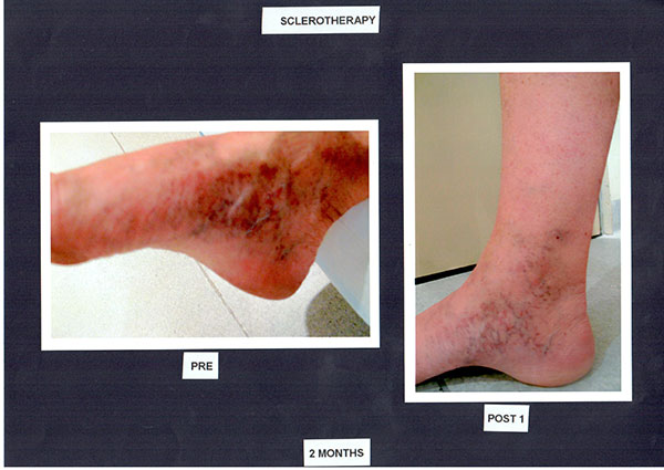 Patient-2)-Sclerotherapy-Before-and-Two-Months-Post-(1)-(1)