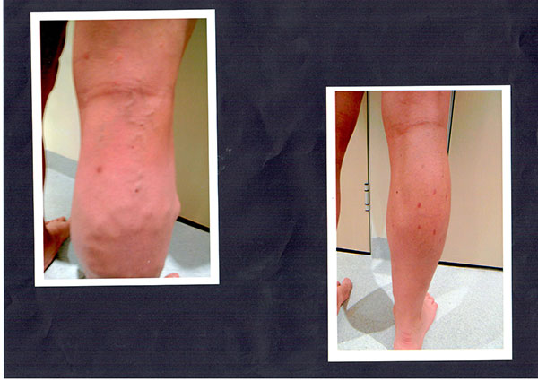 Patient-3)-Phelbectomy-and-Sclerotherapy-Before-and-9-months-Post-(1)
