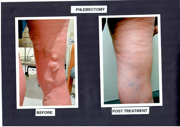 Patient-4)-Phlebectomy-and-Sclerotherapy-Before-and-After-Procedure-(1)