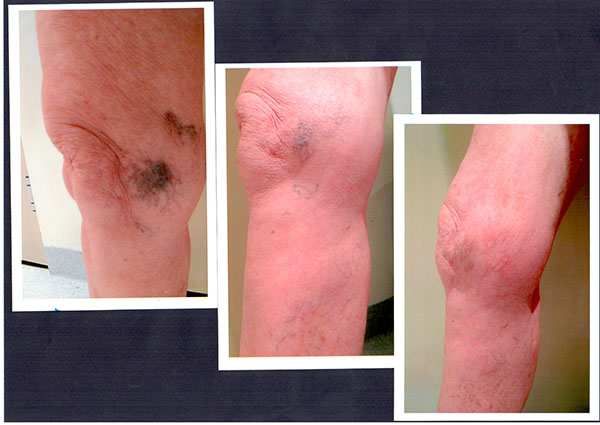 Patient-6)-Sclerotherapy-Before-and-9-months-Post-(1)